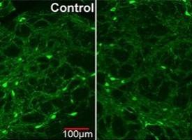 El plomo, factor importante en la aparición de la esquizofrenia