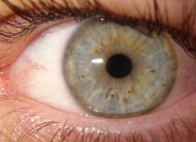 La progresión de la esquizofrenia se puede conocer a través de cambios en la retina