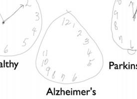 El test del reloj que diagnostica Alzheimer y Parkinson se mejora con un bolígrafo digital