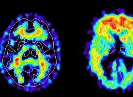 Un tratamiento contra el Alzheimer ya ensayado en humanos podría empeorar la actividad del cerebro