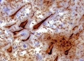 Prueban una vacuna para atacar los enredos del cerebro que causan la pérdida de la memoria en pacientes de Alzheimer