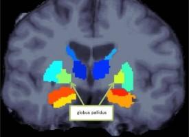 Descubren anomalías en el cerebro asociadas con la esquizofrenia