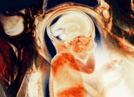 Algunos niños nacen ya con un elevevado riesgo genético de sufrir esquizofrenia