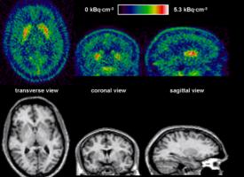 Unos receptores neuronales, responsables de los síntomas de la esquizofrenia
