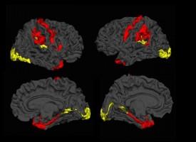 Un nuevo estudio muestra resultados prometedores para los pacientes con esquizofrenia