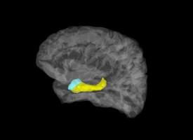 El descubrimiento de cómo viaja el miedo en el cerebro ayudará en los trastornos de ansiedad