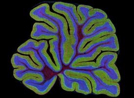 El envejecimiento prematuro de las células por estrés oxidativo favorece el desarrollo de la esquizofrenia
