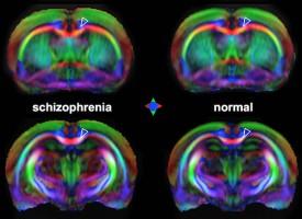 Las resonancias magnéticas podrían detectar signos tempranos de la esquizofrenia