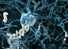 Las enfermedades cerebrovasculares aumentan de forma significativa el riesgo de Alzheimer