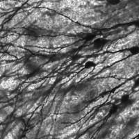 La flexibilidad de las redes neuronales condiciona el riesgo genético de sufrir esquizofrenia
