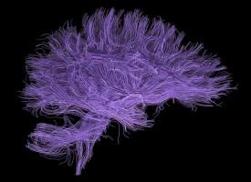 Identifican los procesos por los que un solo caso de estrés severo puede conducir a un trauma psicológico