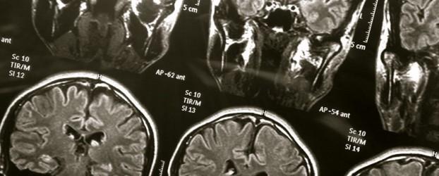 Investigadores identifican diferencias en los cerebros de las personas con alto riesgo de sufrir trastorno bipolar