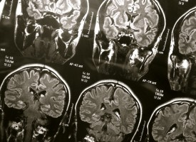 Las personas con TDAH tienen diferencias significativas en cinco estructuras distintas del cerebro