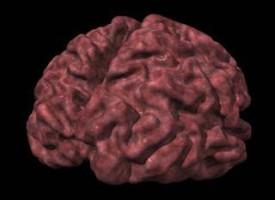 Los bajos niveles de glucosa en el cerebro predicen el alzheimer