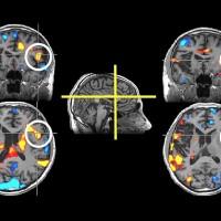Un interruptor químico podría disminuir los síntomas de la esquizofrenia