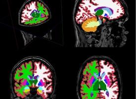 Investigadores españoles abren vías para nuevas estrategias de tratamiento de la esquizofrenia