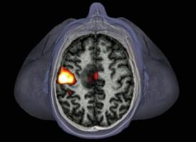 125.000 escáneres del cerebro para aprender cómo se comportan las enfermedades mentales