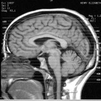Las interrupciones en el tálamo reticular del cerebro conduce a trastornos como la esquizofrenia y el TDAH
