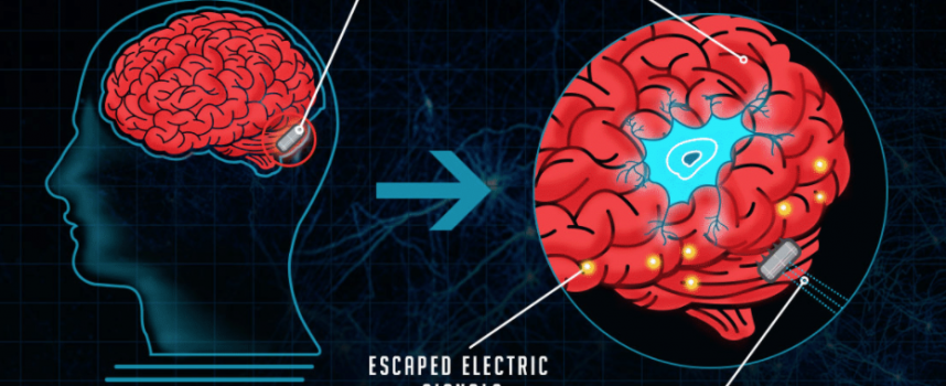 Logran implantar una prótesis digital en el cerebro para potenciar la memoria