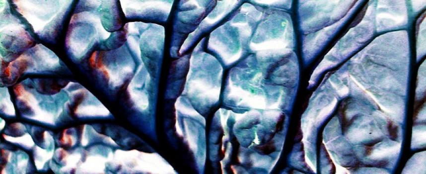 Cuestionan que en el Alzheimer se pierdan muchas neuronas