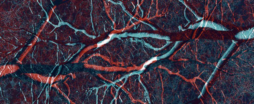 Los factores de riesgo cardiovascular también lo son del Alzheimer