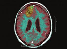 La inhibición de una enzima del metabolismo abre una vía para nuevos tratamientos para combatir la epilepsia