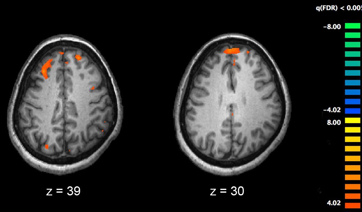 esquizofrenia-cerebro