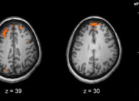 La estimulación transcraneal mejora las dificultades cognitivas de los pacientes con esquizofrenia