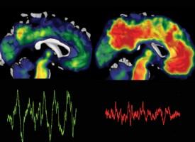 Se vincula el dormir mal con el alzhéimer