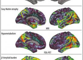 ¿Por qué la memoria musical se mantiene a pesar de tener un alzhéimer avanzado?
