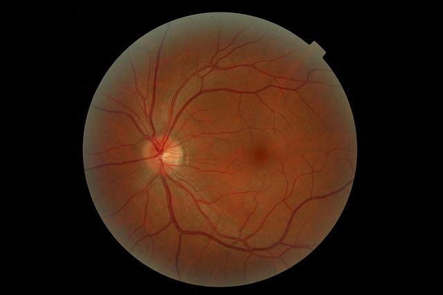 retina-ojo