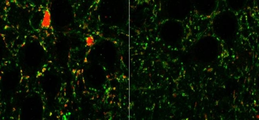 La pérdida de un receptor en ciertas neuronas puede promover esquizofrenia y autismo
