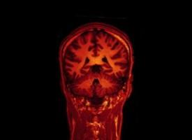 Las alucinaciones se producen por diferencias estructurales en el cerebro