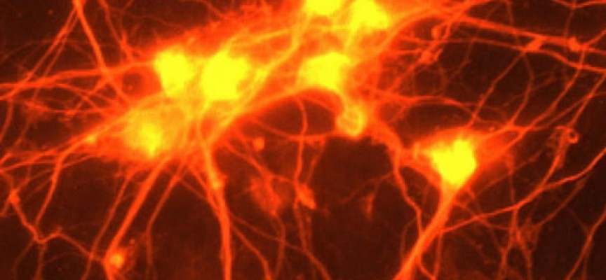 La epigenética durante el desarrollo del cerebro, clave para explicar la esquizofrenia