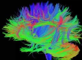 Los adictos a Internet sufren alteraciones en la estructura cerebral