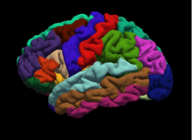 Investigadores españoles identifican un grupo de pacientes diferenciado dentro de la esquizofrenia
