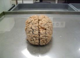 ¿Hasta qué punto la esquizofrenia está determinada por la genética?