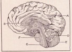 Las resonancias magnéticas ayudarán a comprender mejor el desarrollo de la esquizofrenia en la adolescencia