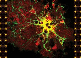 Las microglías del cerebro podrían ser las causantes de la esquizofrenia, el párkinson y el alzhéimer