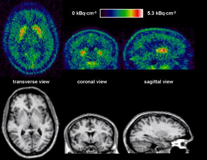 Unos receptores neuronales, responsables de los síntomas de la ...