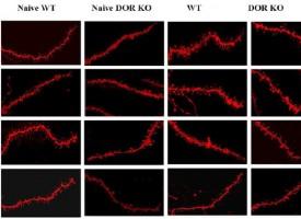 Descubren un nuevo receptor neuronal implicado en los trastornos alimentarios