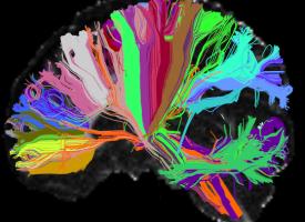 Se encuentran mutaciones en el ADN relacionadas con el riesgo de esquizofrenia y el abandono escolar
