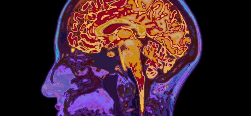 Descubren una terapia génica que frena el alzhéimer en ratones