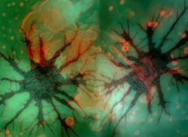 Descubren que un desequilibrio químico induce a la esquizofrenia