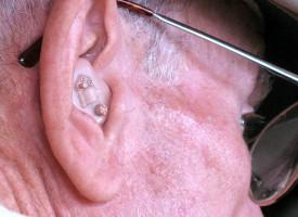 La pérdida auditiva durante la vejez aumenta el riesgo de depresión y deterioro cognitivo