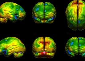 ¿Es depresión o demencia? La tecnología para tomar imágenes cerebrales ayuda a distinguirlos