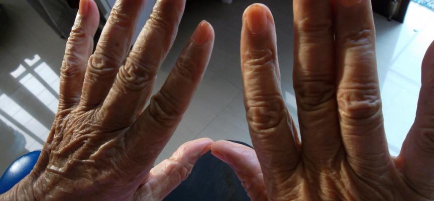 Identifican un biomarcador en el líquido cefalorraquídeo para detectar el Alzheimer