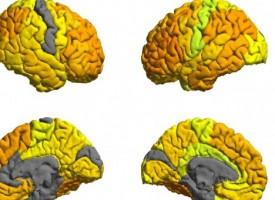 El mal funcionamiento de una proteína podría ser la causa de los pacientes con trastorno bipolar que responden al litio