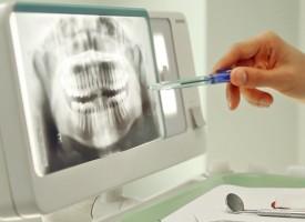 El estrés y la ansiedad están detrás del bruxismo, el hábito de rechinar los dientes