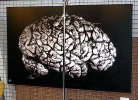 Un estudio relaciona la presencia de proteína amiloide con una peor memoria